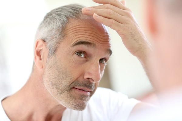 common causes for hair loss after a surgical procedure