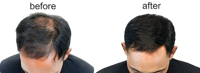 FUE hair transplant recovery and results
