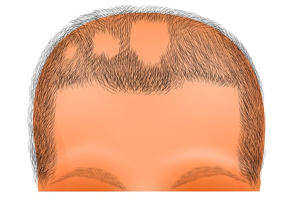 Facts patients need to know about Alopecia Areata hair loss